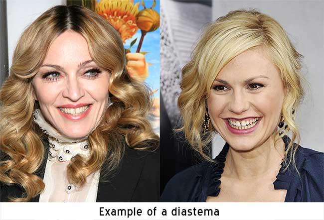 Diastema Photo