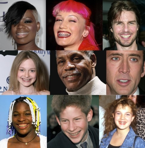 Celebrities with braces