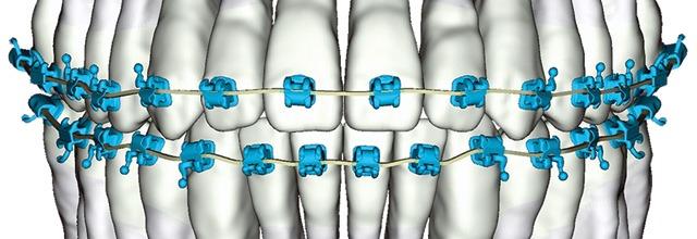 digital braces