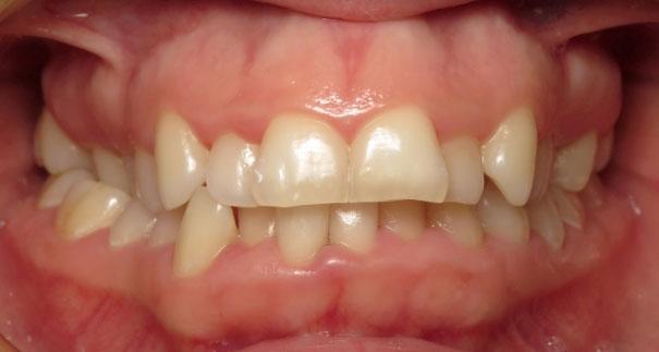 Vermette Orthodontics